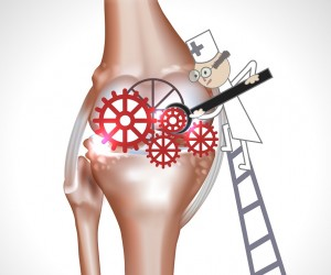 Breakthrough Tech Offers Alternatives to Knee Replacement