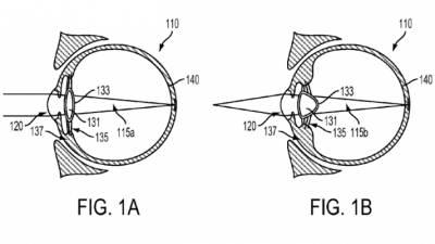 google electronic implantable eye