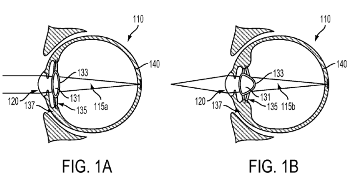 Google Alphabet electronic implantable eye patent