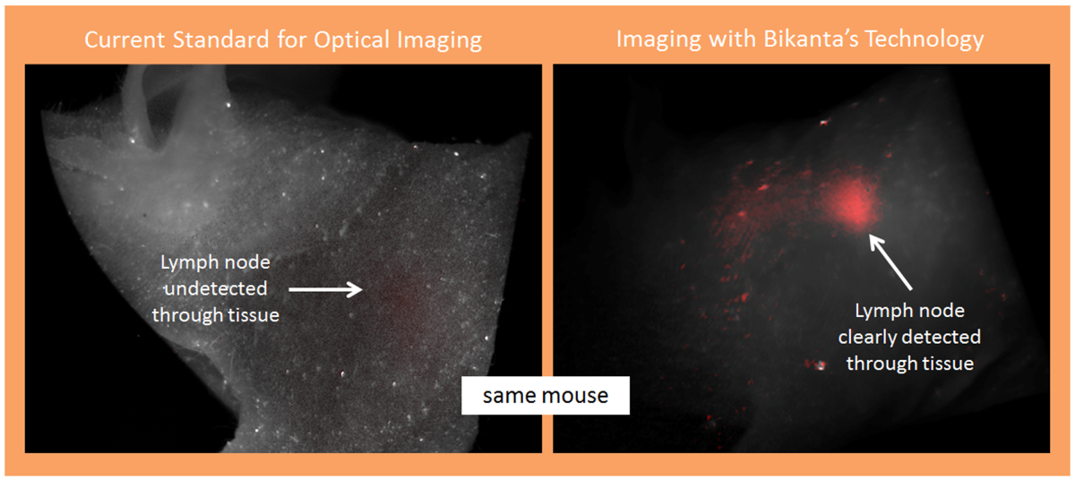 imaging tech for detecting cancer with diamonds from Bikanta