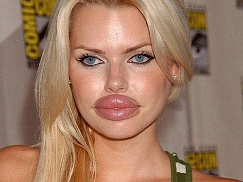 woman with huge lips as example of bad plastic surgery