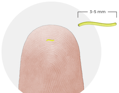 profuse 3.5 mm thumb skin implantable chip biosensor