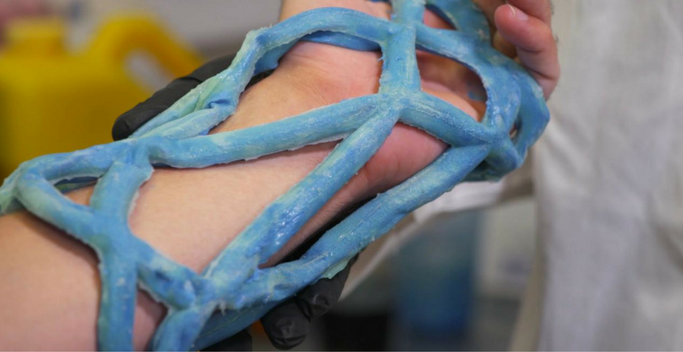 3D printed orthopedic cast with open design on a wrist